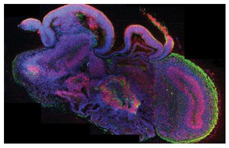 Sezione trasversale di un organoide cerebrale (Immagine copyright: IMBA/ Madeline A. Lancaster)