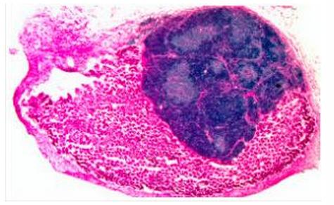 Cellule timiche (blu scuro) con nello sfondo delle cellule di rene (rosa) (Immagine: MRC Centre for Regenerative Medicine, University of Edinburgh)